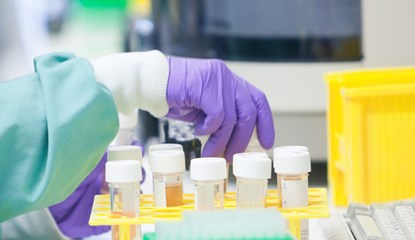 Lupus: the search for a cure continues | GSK